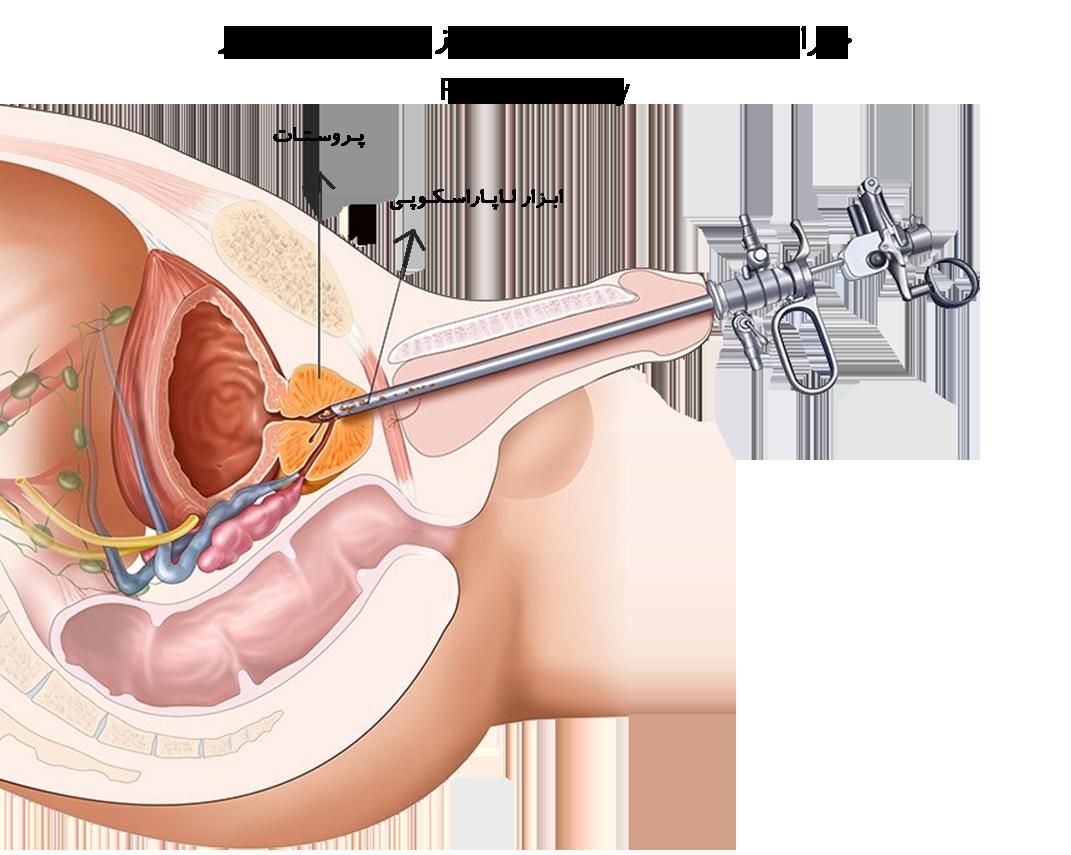 Prostatectomy