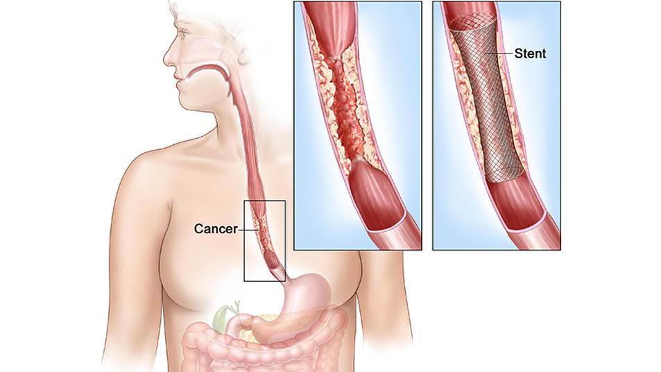 esophagus surgery