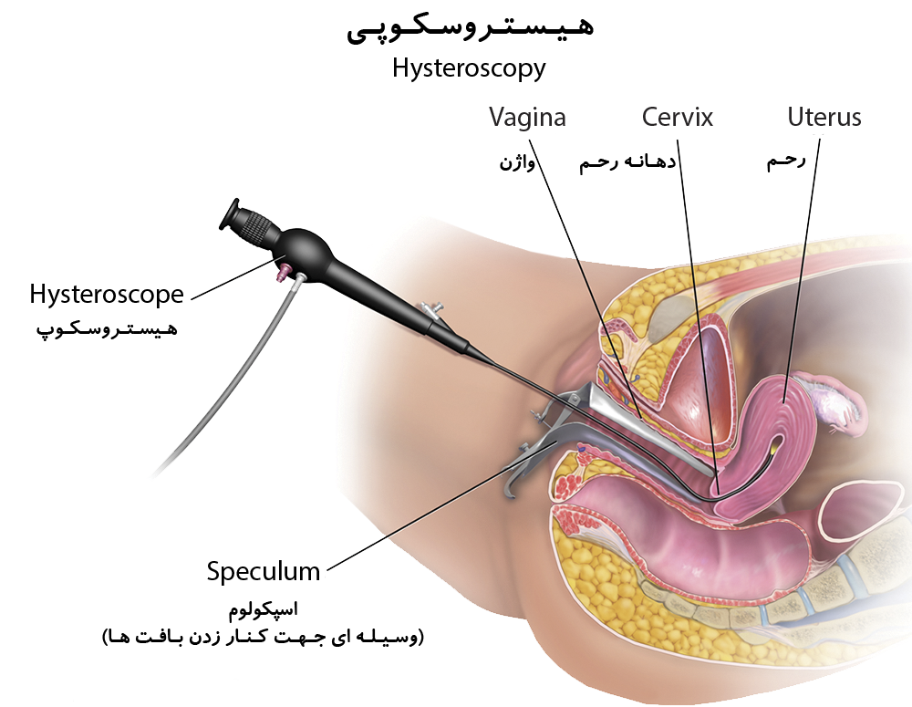 1- Hysterectomy surgery
